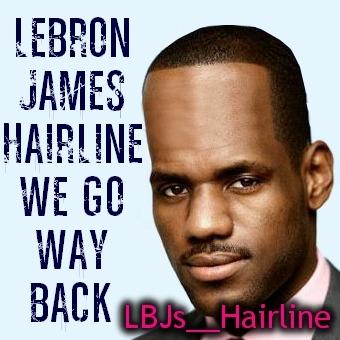 Bad Hairline Jokes
