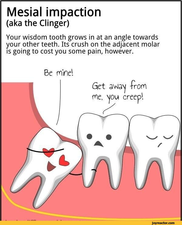 Wisdom Teeth Removal Jokes